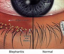 blepharitis pictoral