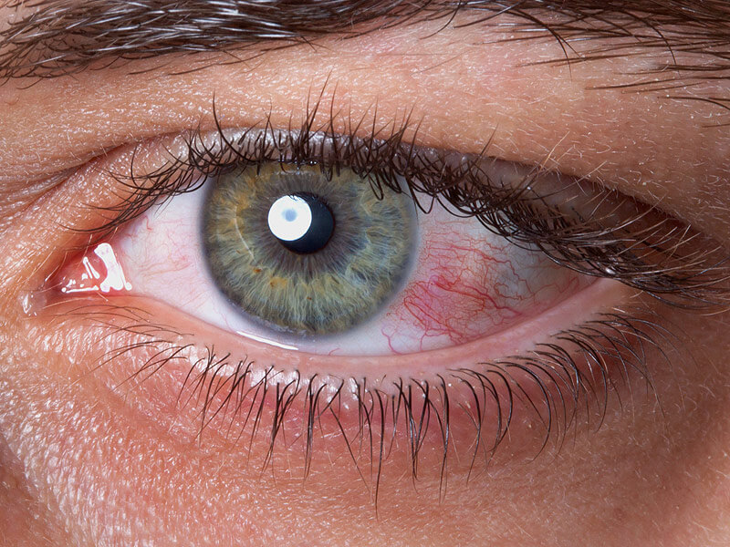 Dry-Eye-Syndrome-Market